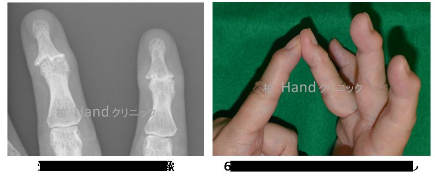 関節 更年期 が の 男性 痛い 指
