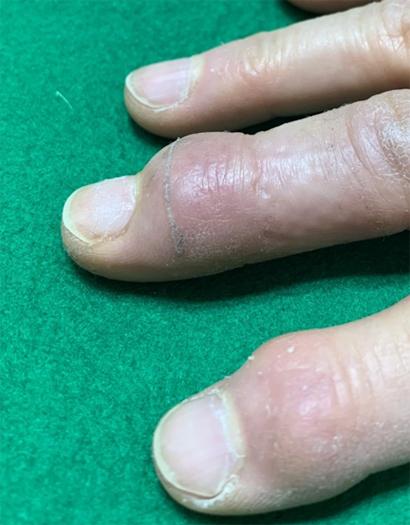 指 の 第 一 関節 痛い