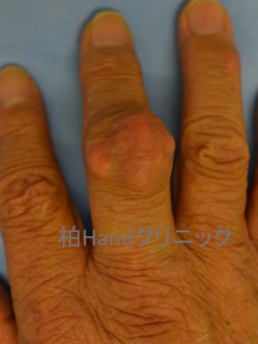 一 本 が だけ 指 腫れる